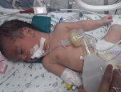 فريق طبى ببورسعيد ينجح فى إعادة أمعاء طفل عمره 30 ساعة لمكانها الطبيعى