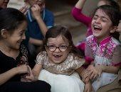بالصور.. طفلة باكستانية تصاب بمرض وراثى نادر يعرقل نمو جسدها