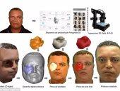 بالصور..ناجٍ من السرطان يستخدم تقنية 3D لسد فجوة تركها الورم فى وجهه