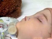 بالفيديو.. أغرب 15 حالة للأطفال حول العالم بين عيوب خلقية وأمراض نادرة