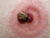 نصائح طبية ومنزلية للتخلص من لدغات البعوض