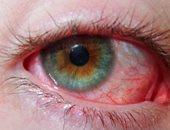 مع قدوم الشتاء.. 3 نصائح لعلاج برد العيون