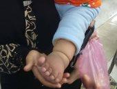 بالصور..مأساة أم بالشرقية تعجز عن توفير جورب طبى لطفلتها المصابة بمرض نادر