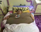 طبيب هندى يوضح سبب توقف إجراء جراحة لمواطنة مصرية تزن نصف طن