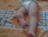بالصور.. عامل باليومية بالشرقية: ابنى عمر يحتاج 3 عمليات  كي يتحرك