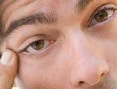 كيفية التخلص من التهاب الجفون بالعين