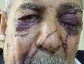 """بالصور.. 135 غرزة فى وجه """"عم سعيد"""" بسبب 700 جنيه.. والجانى يهدده بالقتل"""