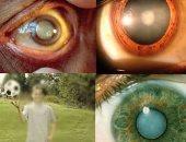 8 عوامل تسبب المياه البيضاء فى العين وتؤدى لفقدان البصر.. تعرف عليها