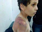 التقرير الطبى لتعذيب سيدة لنجل زوجها بالشروق: مصاب بكدمات وكسر باليد