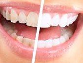 """لو بتحلمى بـ """"هوليود سمايل""""..حاربى اصفرار الأسنان بالفاكهة"""