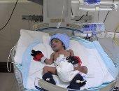دراسة: إعطاء الأطفال المبتسرين جرعات من الكافيين يحسن وظائف الرئة
