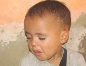 بالصور... مأساة طفل يحتاج لزراعة عدسة عين بديلة وأسرته لاتملك التكاليف