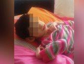 حكومة أردوغان تقطع المساعدات عن طفلة معاقة لاتهام أبيها فى محاولة الانقلاب