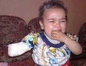"""رواد """"فيس بوك"""" يتداولون صورة لطفلة بُتِرَت يدها بالمستشفى نتيجة خطأ طبى"""