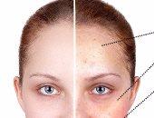 مشروبات وأطعمة يؤثر تناولها على الوجه ويجعلك أكبر سنا.. تعرف عليها