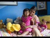 جراحة نادرة لطفلة 3 أعوام لاستئصال رجل ثالثة بالحوض