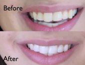 خدعة جديدة لتبييض أسنانك فى دقيقتين .. تعرف عليها