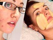 4 طرق لاستخدام البطاطس فى العناية بالبشرة