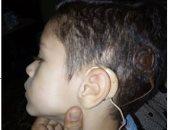 قارئ يناشد بمساعدته فى توفير سماعة أذن لطفله