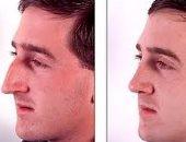 أحدث علاج للجيوب الأنفية.. جهاز لتوفير جرعات الكورتيزون فى الأنف