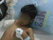 مأساة.. بتر ذراع طفل بسبب إهمال طبيب بمستشفى سمالوط العام فى المنيا
