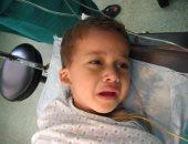 بالصور.. استئصال ورم سرطانى من كبد طفل يمنى بالإسكندرية
