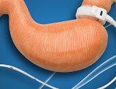 انتبه.. جراحات السمنة تسبب تشوهات الحيوانات المنوية وانخفاض الخصوبة