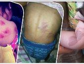 حبس ربة منزل 4 أيام لتعذيبها أبناء زوجها المتوفى بإطفاء السجائر فى أجسادهم