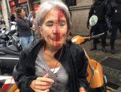 بالصور.. إصابة مسنيين مشاركين فى استفتاء كتالونيا