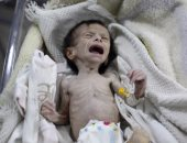 يونيسف: توقعات بإصابة 10.4 مليون طفل بسوء التغذية فى اليمن ودول أفريقية عام 2021
