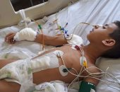 خطأ طبى يتسبب فى إصابة طفل بعجز دائم فى الدقهلية