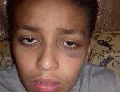 """""""زياد"""" ذهب للمدرسة وعاد بلكمة فى الوجه.. ووالده: مدرس ضربه"""