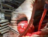 بعد سقوط شبكة تجارة الأعضاء البشرية فى حلوان.. نرصد أبرز 7 قضايا فى الآونة الأخيرة.. الفقر والجهل واستغلال الفقراء أبرز أسباب الانتشار بالرغم من تغليظ العقوبة لتصل للمؤبد والإعدام