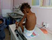 صور.. سوء التغذية تهدد حياة مئات الأطفال فى اليمن