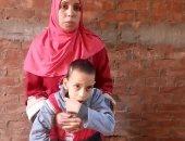 مأساة أسرة بالشرقية عاجزة عن علاج نجلها المعاق وتوفير العلاج له