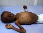 وزارة الصحة اليمنية: وفاة 62 شخصا بمرض الدفتيريا منذ ظهوره