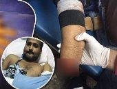 """صور.. """"لأول مرة فى مصر"""".. مستشفى الطوارئ بجامعة المنصورة تنجح فى توصيل كف يد """"مبتورة"""".. المريض خضع لجراحة ميكروسكوبية دقيقة استغرقت 9 ساعات.. فريق طبى متخصص أعاد توصيل الشرايين والعظام والأعصاب"""