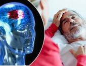 الحقه بسرعة.. كل دقيقة تمر على مريض السكتة الدماغية تفقده 1.9% من خلايا مخه