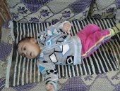 الطفلة رنا تعانى من شلل رباعى ودماغى.. وأسرتها تناشد علاجها على نفقة الدولة
