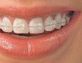 شفاف ومعدنى وجراحى.. تعرف على أنوع تقويم الأسنان