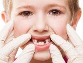 من الحشو للخلع .. هذه خطوات علاج تسوس أسنان طفلك