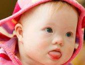 كيف تكون التربية الصحية لطفل متلازمة داون؟