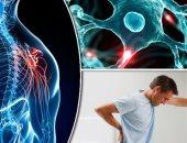نصائح لعلاج التصلب المتعدد وكيفية اكتشافه