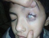 """الطفل محمود يعانى مرضا أدى لغلق عينيه وتساقط جلده ووالده يناشد """"الصحة"""" لعلاجه"""