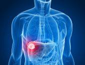 اعراض سرطان الكبد اهمها فقدان الشهية والوزن