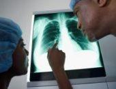 تعرف على الأسباب الأكثر شيوعًا لآلام القفص الصدري.. والأهم أن تعاود الطبيب
