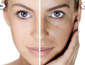 إزاى تبيضى بشرتك بطريقة سحرية بمواد طبيعية