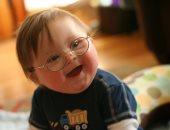 انتبه.. ذوو الإعاقة الذهنية فئة عالية الخطورة تجاه الإصابة بكورونا