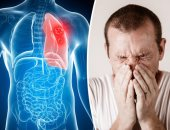 """""""دوفيليسيب""""دواء لعلاج السرطان قد يساعد فى الحد من التهاب الرئة لمرضى كورونا"""
