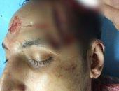 عامل حاول الدفاع عن شقيقته فشق المتحرشون رأسه بإمبابة